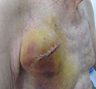 Expanded hematoma following pacemaker insertion